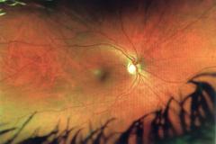 Eye Exam Close-up